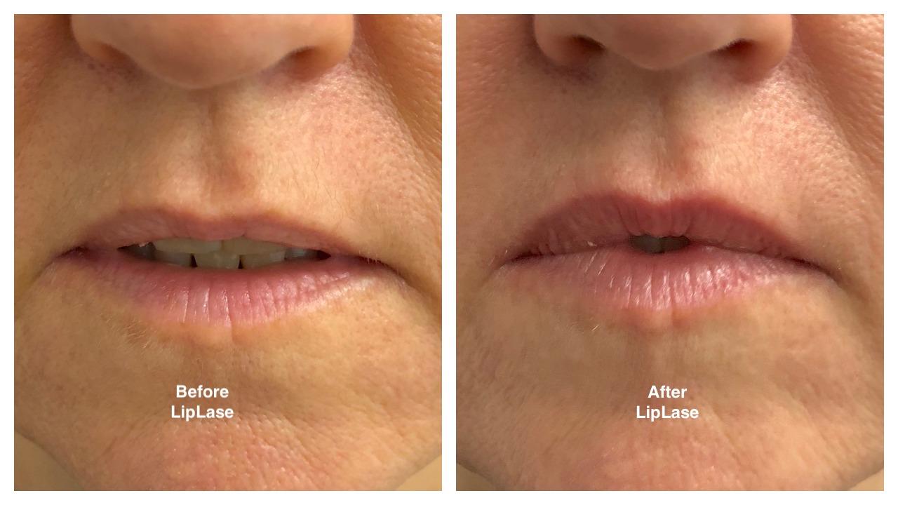 liplase-before-after.jpg