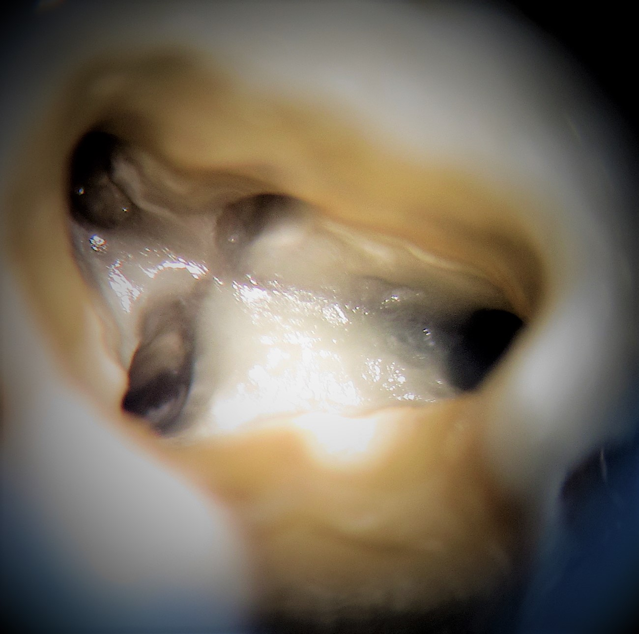 Examples of our work at Norfolk Endodontics