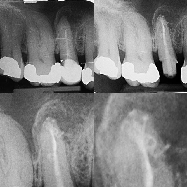 Re-rct, fibre post and core... Root canal filling or 3d obturation? #rootcanal #apicaldelta #warmverticalcondesation #specialistendodontics