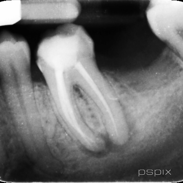 Non-surgical retreatment of lower first molar with sexy lateral canal! #warmverticalcondesation #specialistendodontics #3dobturation #saveatooth #lateralcanal #rootcanal