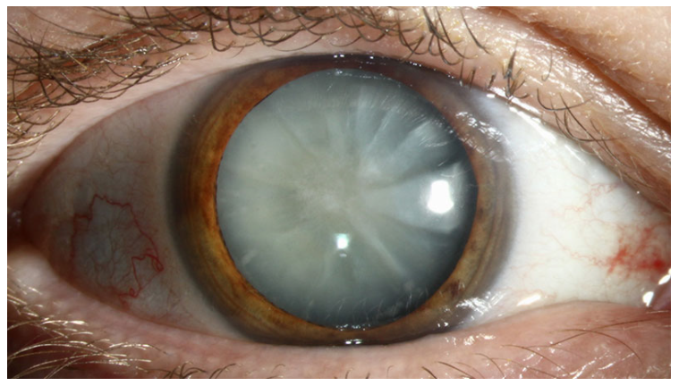 A photo of a patient with a dense white cataract