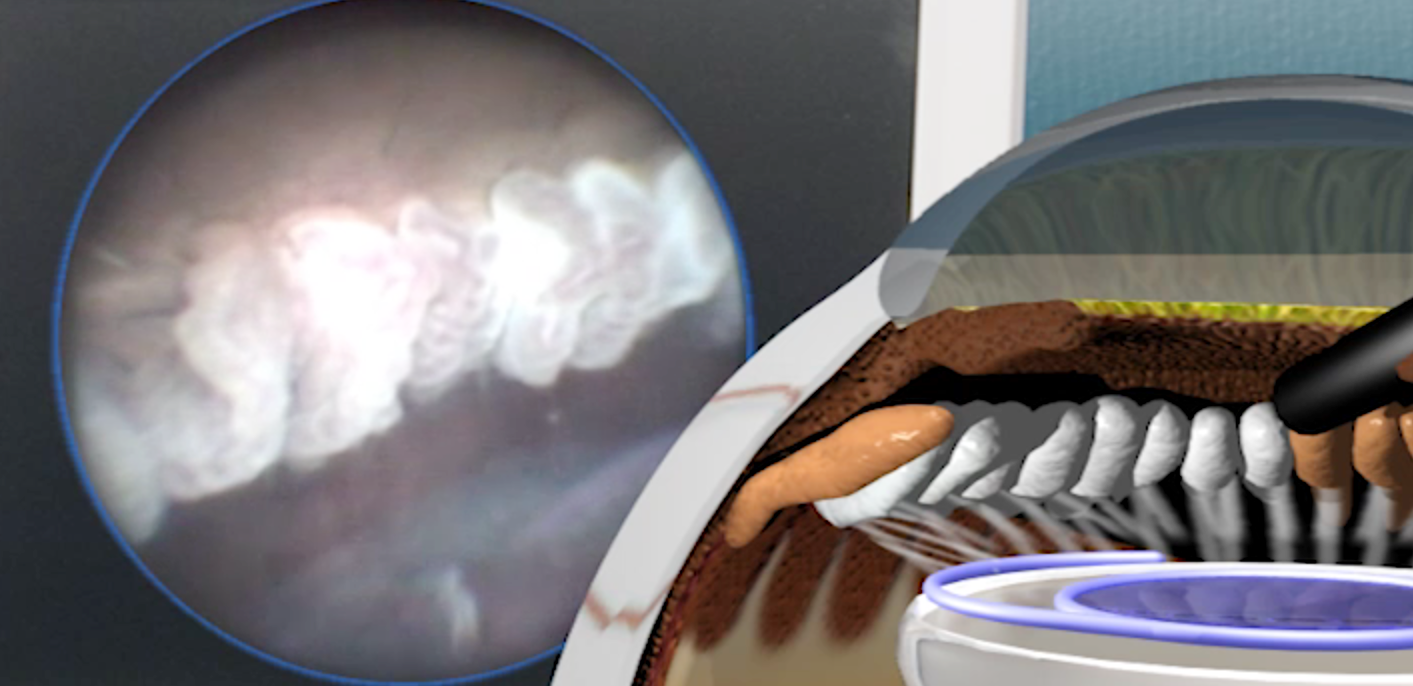 The picture on the right shows the laser probe pointing at the ciliary processes and they blanche with application of laser This is seen on a screen by the surgeon so it is a form of micro-laparoscopic laser surgery.