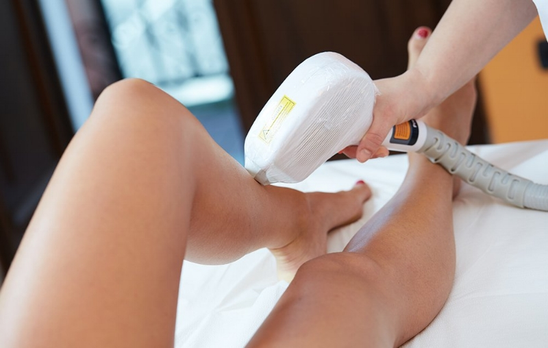 Hair removal with medlite -