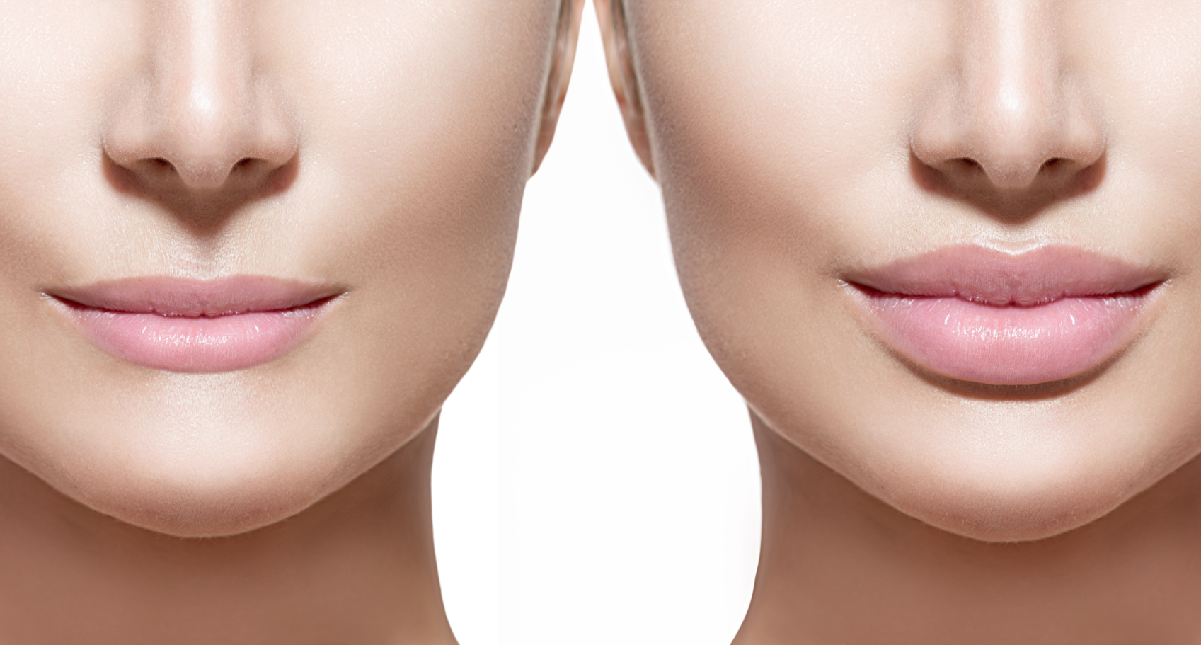 Juvederm xc - Style Your Smile