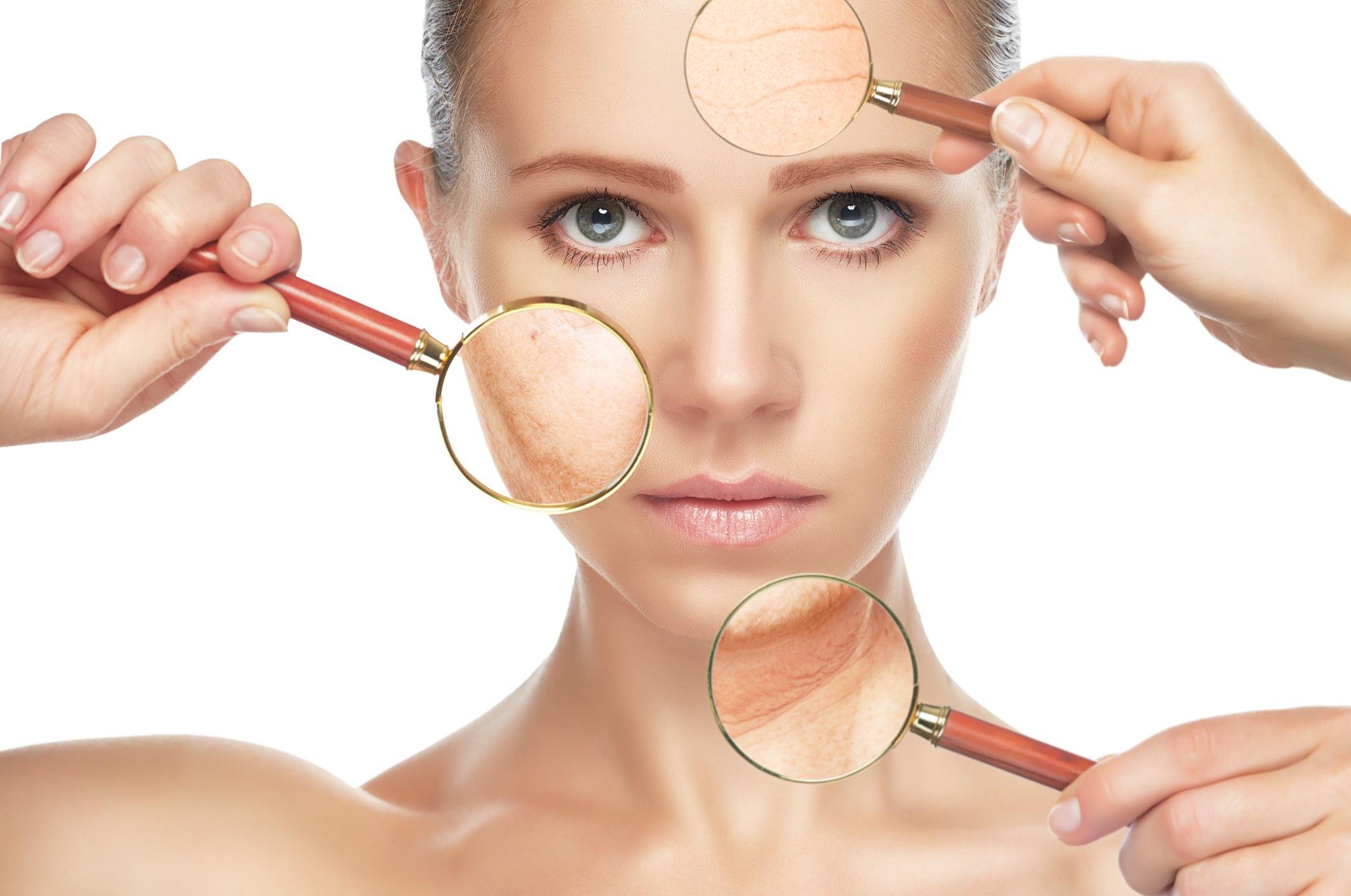 Laser skin rejuvenation with medlite - For Wrinkles & Acne Scars