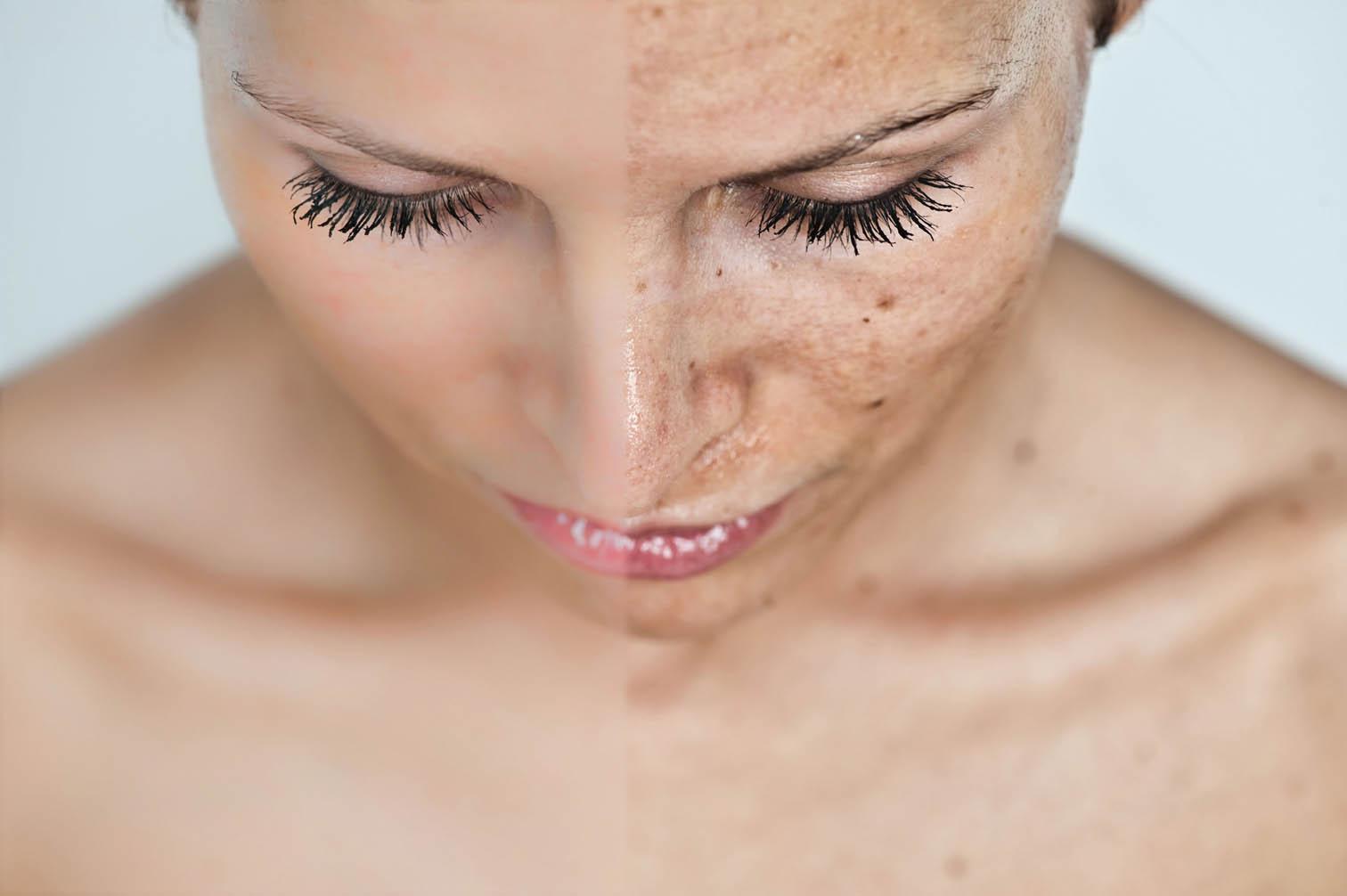 Laser skin Rejuvenation with medlite - Preserve Your Skin's Natural Beauty
