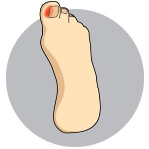 Ingrown Toe Nails