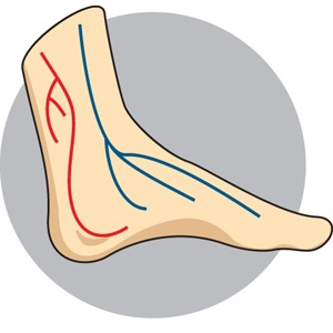 15_Diabetic_Foot.jpg