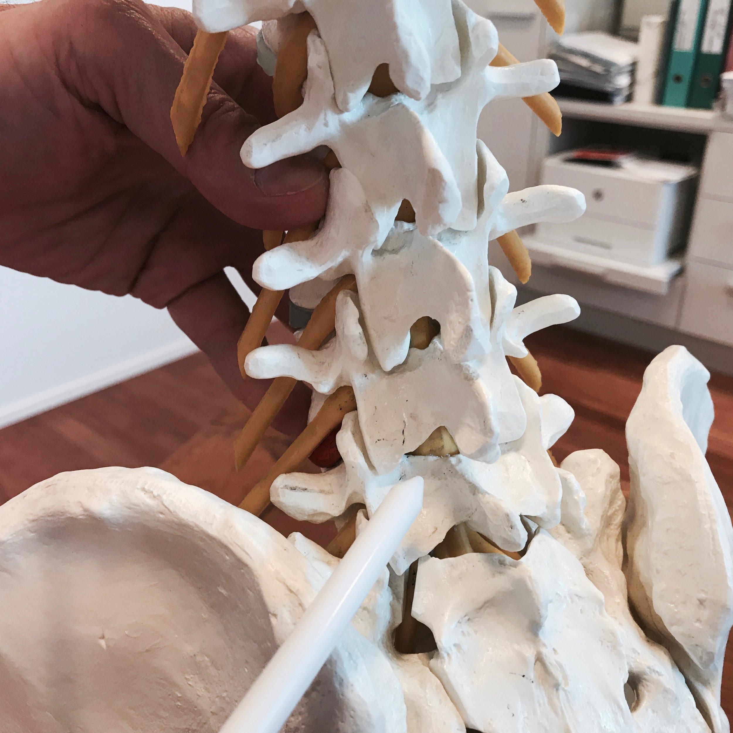 Operative Therapien beim Bandscheiben-Vorfall - Bei operativen Bandscheiben-Therapien kommen verschiedene, insbesondere unter dem Mikroskop (Mikrodiskektomie) vorgenommene Operations-Techniken oder die mikrochirurgische Schlüssellochtechnik zur Anwendung.