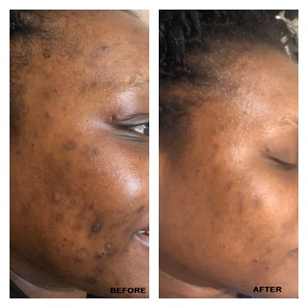 MICRONEEDLING AFTER 2 SESSIONS