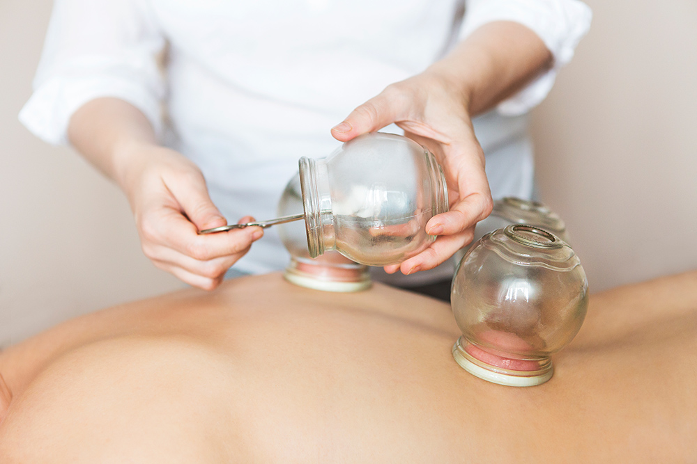 woman performing cupping