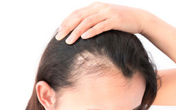 Alopecia Areata    Alopecia areata is an autoimmune disorder characterized by transient, non-scarring hair loss and preservation of the hair follicle. Hair loss can take many forms ranging from loss in well-defined patches to diffuse or total hair loss, which can affect all hair-bearing sites. Patchy alopecia areata affecting the scalp is the most common type. Alopecia areata affects nearly 2% of the general population at some point during their lifetime. Skin biopsies of affected skin show a lymphocytic infiltrate in and around the bulb or the lower part of the hair follicle in the anagen (hair growth) phase. A breakdown of immune privilege of the hair follicle is thought to be an important driver of alopecia areata. Genetic studies in patients and mouse models have shown that alopecia areata is a complex, polygenic disease. Several genetic susceptibility loci were identified to be associated with signalling pathways that are important to hair follicle cycling and development. Alopecia areata is usually diagnosed based on clinical manifestations, but dermoscopy and histopathology can be helpful. Alopecia areata is difficult to manage medically, but recent advances in understanding the molecular mechanisms have revealed new treatments and the possibility of remission in the near future.     *Source: NCBI, Pubmed.gov