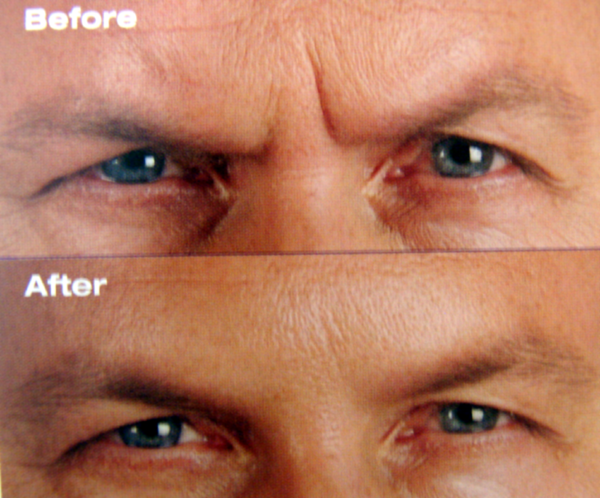 botox_before_after_1.png