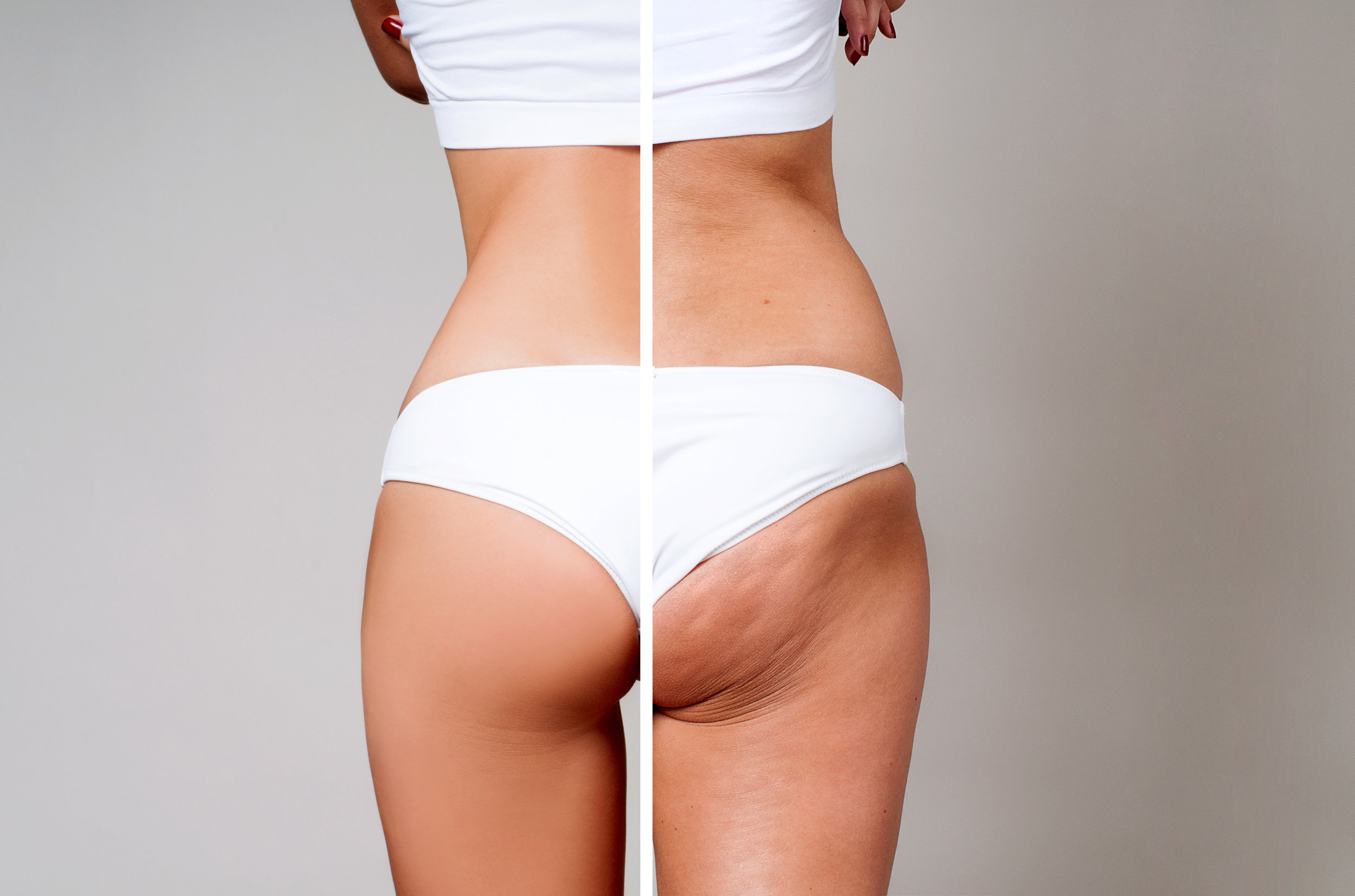 - The solution to cellulite doesn't come in a jar of cellulite cream or a cellulite exercise program. (If the solution to cellulite were that simple, no woman would have cellulite). Research has suggested that acoustic waves (Cellupulse) are effective in disrupting the sclerotic fibrous tissue responsible for the uneven appearance of cellulite. Acoustic wave therapy has also been demonstrated to increase the thickness of the reticular dermis and decrease the protrusion of fat into the area.