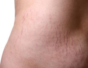 stretch-marks.jpg