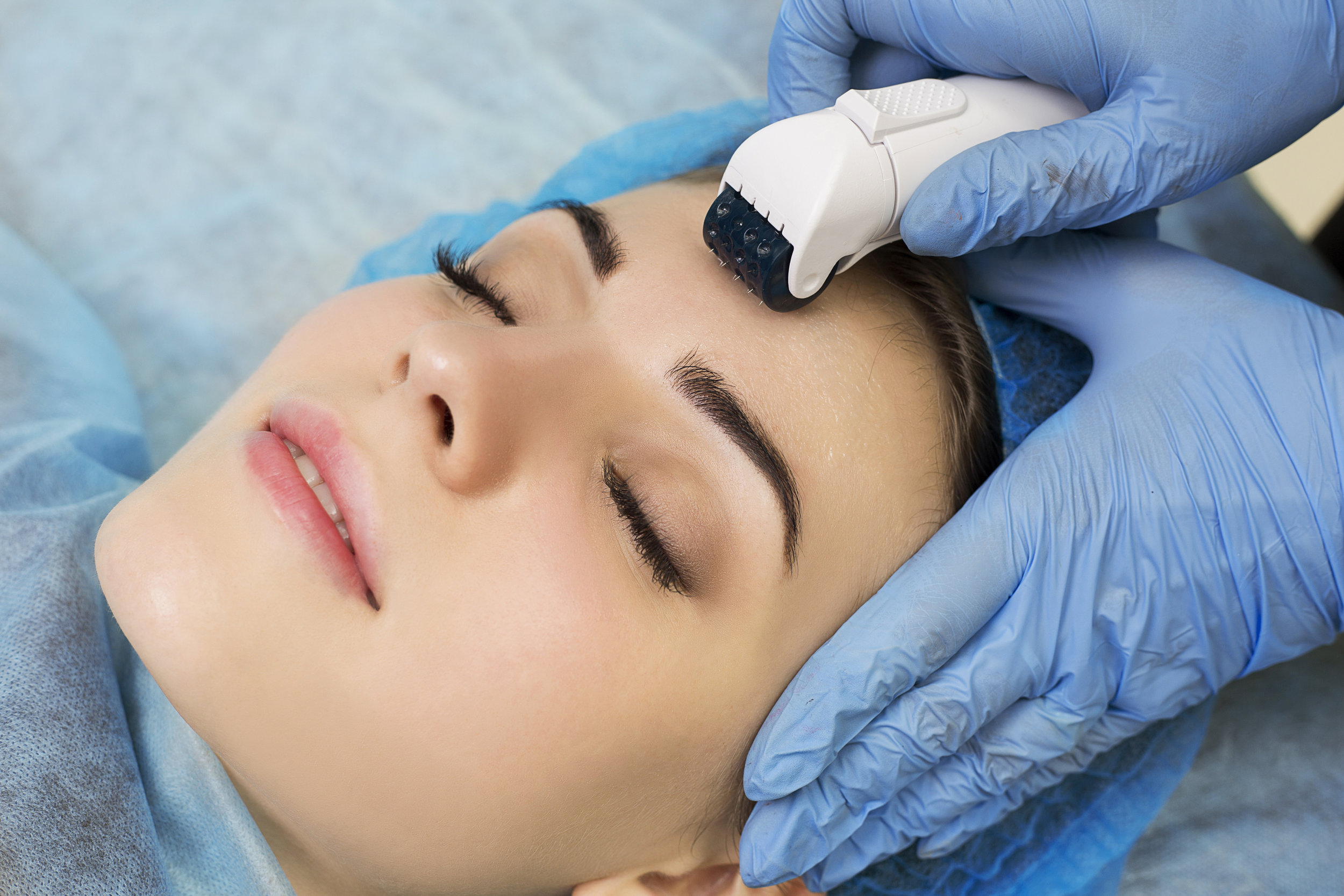 WHAT IS MICRO-NEEDLING? - A micro-needling treatment uses a fractional micro-needling device that works to tighten, lift and rejuvenate the skin. It's effective in reducing fine lines and wrinkles, stretch marks, surgical and acne scars. Fractional micro-needling or collagen induction therapy (CIT) uses needles to pierce the skin in a controlled and precise pattern. Compared to other skin rejuvenation treatments, it is safe on any skin type, has a short treatment time and minimal discomfort with virtually no downtime. Micro-needling : a revolutionary breakthrough for beautiful skin.-It tightens, lifts and rejuvenates skin.- Reduces acne scars, surgical scars and other scarring -Improves wrinkles and fine lines- Improves stretch marks