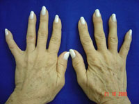 before-pr-hands.jpg