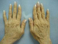 pr-hands-after-10-days.jpg