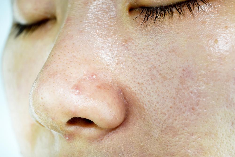 Bild zeigt eine fettige, ölig glänzende Haut mit großen Poren