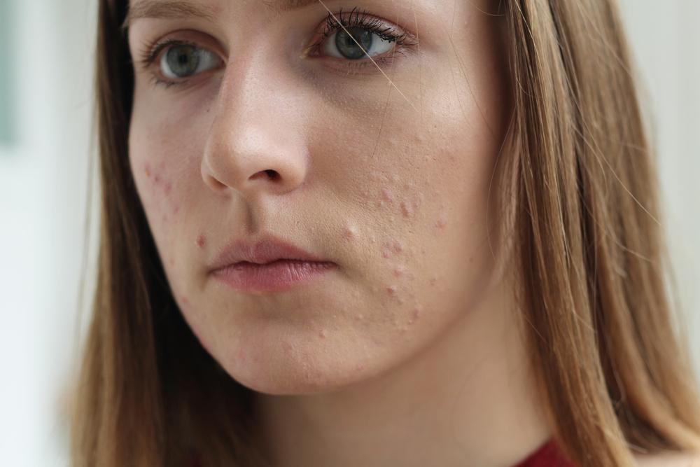 Bild zeigt verstopfte Poren mit entzündlichen Komedonenansammlungen