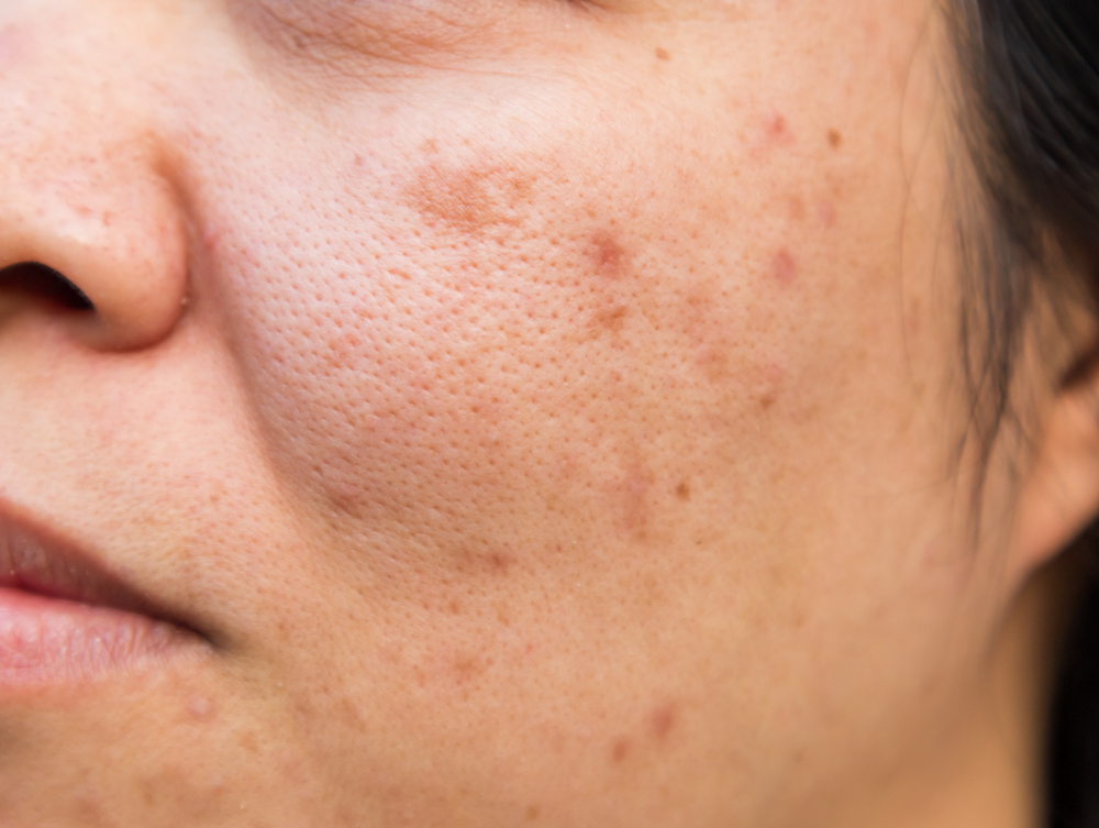 Bild zeigt das typische Entzündungsbild der Acne tarda im Wangenbereich