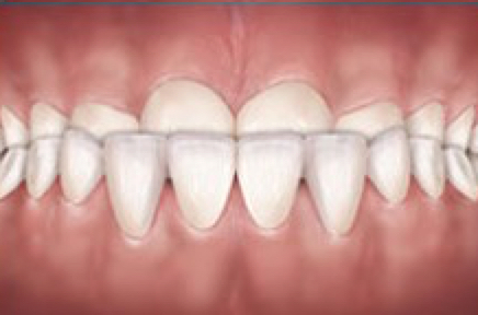 The bottom teeth are in front of the top teeth. This can cause unwanted wear to front teeth if left untreated. This type of bite is corrected more easily at a younger age