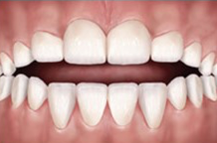 The front teeth don't overlap each other when biting. This can make it difficult to eat certain foods. This may be due to a thumb sucking habit or from causes arising from the teeth or jaws.