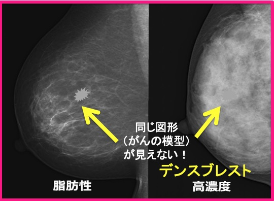 densebreast_pair.jpg