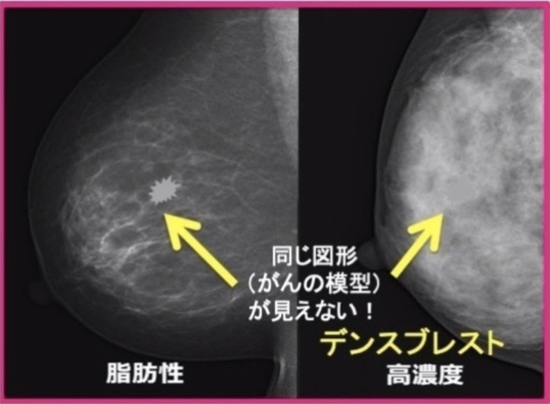 マンモグラフィでは、デンスブレストの場合、がんを発見しにくい