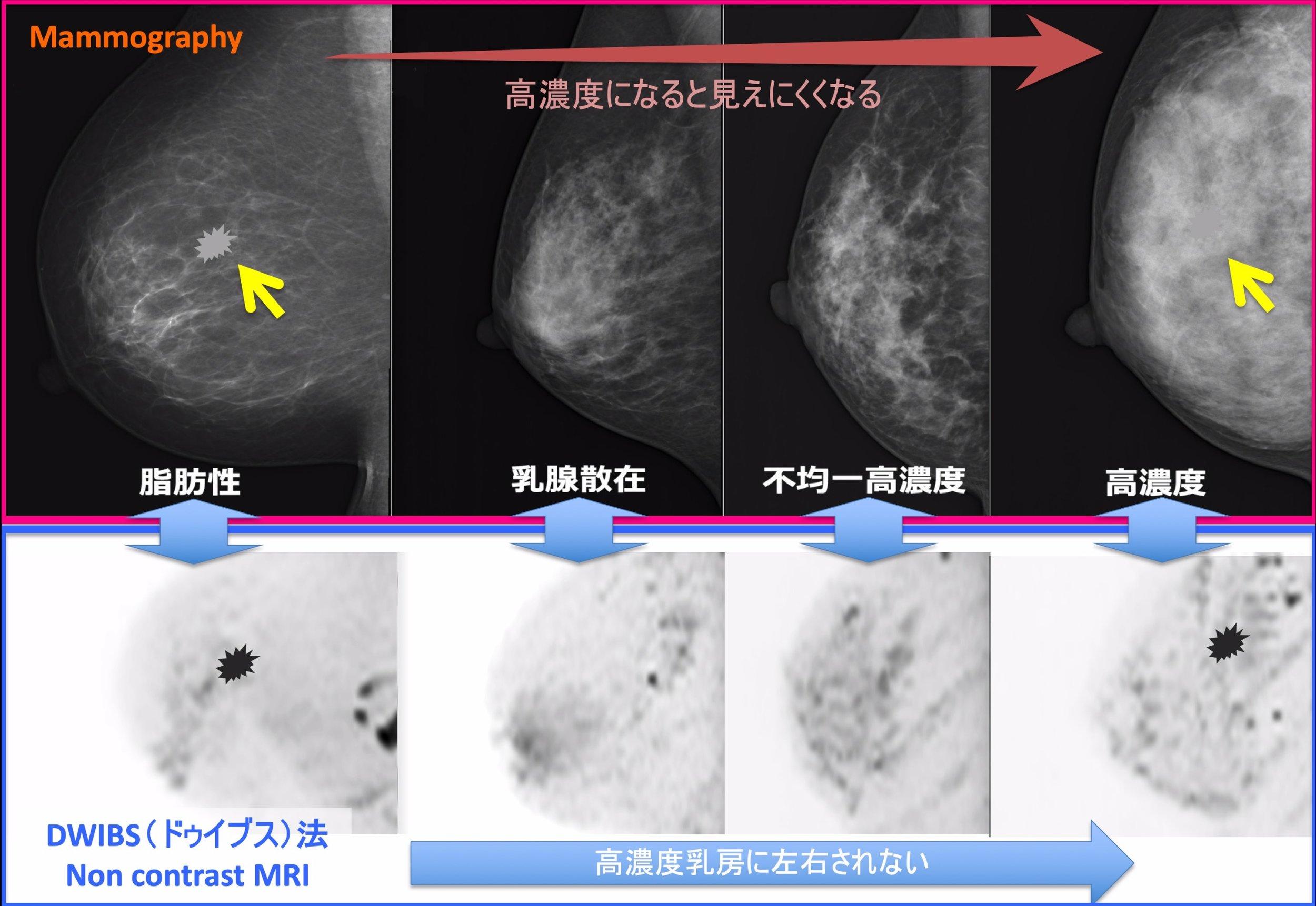 dense_breast.jpg