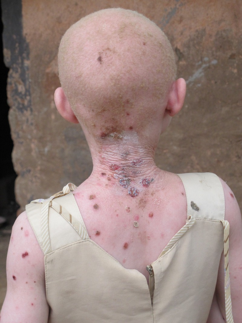 80% of people with albinism in sub-Saharan Africa die from skin cancer before the age of 30. A terrifying 98% are dead by 40. Skin lesions start appearing early on children, and are preventable with life saving tools such as sunscreen &hats.