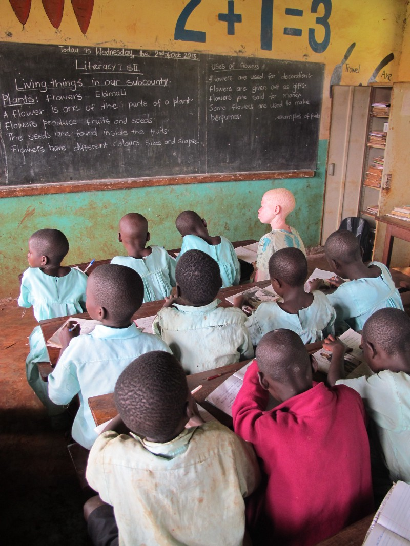 Education is needed for teachers, to provide children with albinism front row seats due to lack of vision.