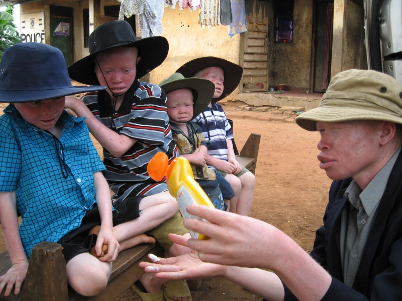 Advantage Africa is supporting children and adults with albinism in Uganda with high SPF sunscreen, lip salve, hats and long-sleeved clothing so they can stay safe from skin cancer and have the chance of a full life.