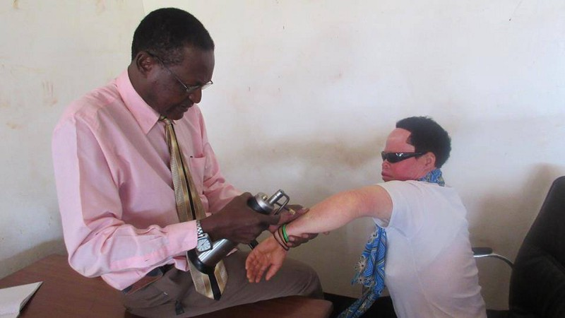 Available for the first time in Uganda, Advantage Africa is supporting dermatologist Dr. Ngobi to perform cryosurgery to remove pre-cancerous lesions from the skin of people with albinism. This vital work is stopping skin cancer in its tracks!