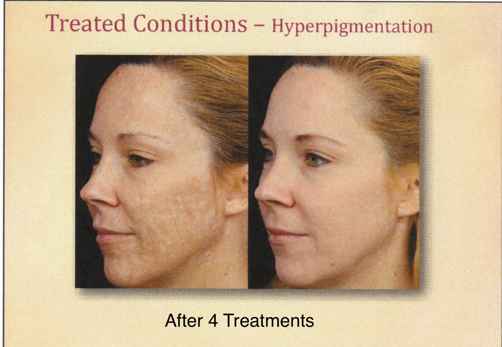 before and after microneedling hyperpigmentation results