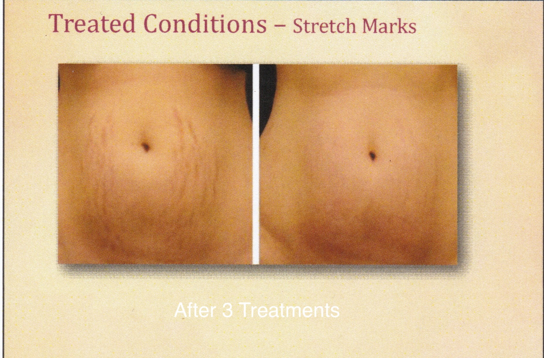 before and after results after microneedling stretch marks