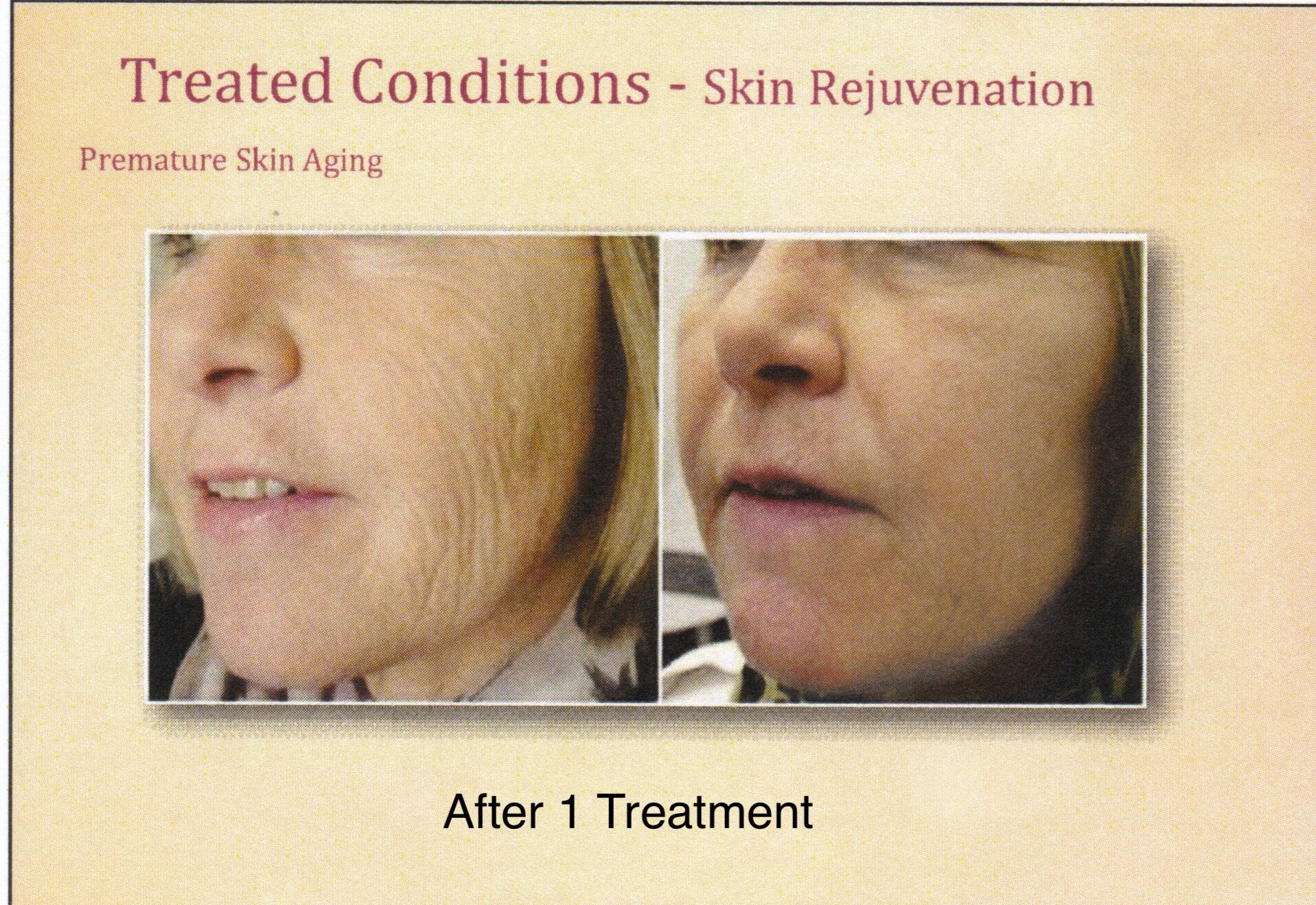before and after microneedling premature aging results
