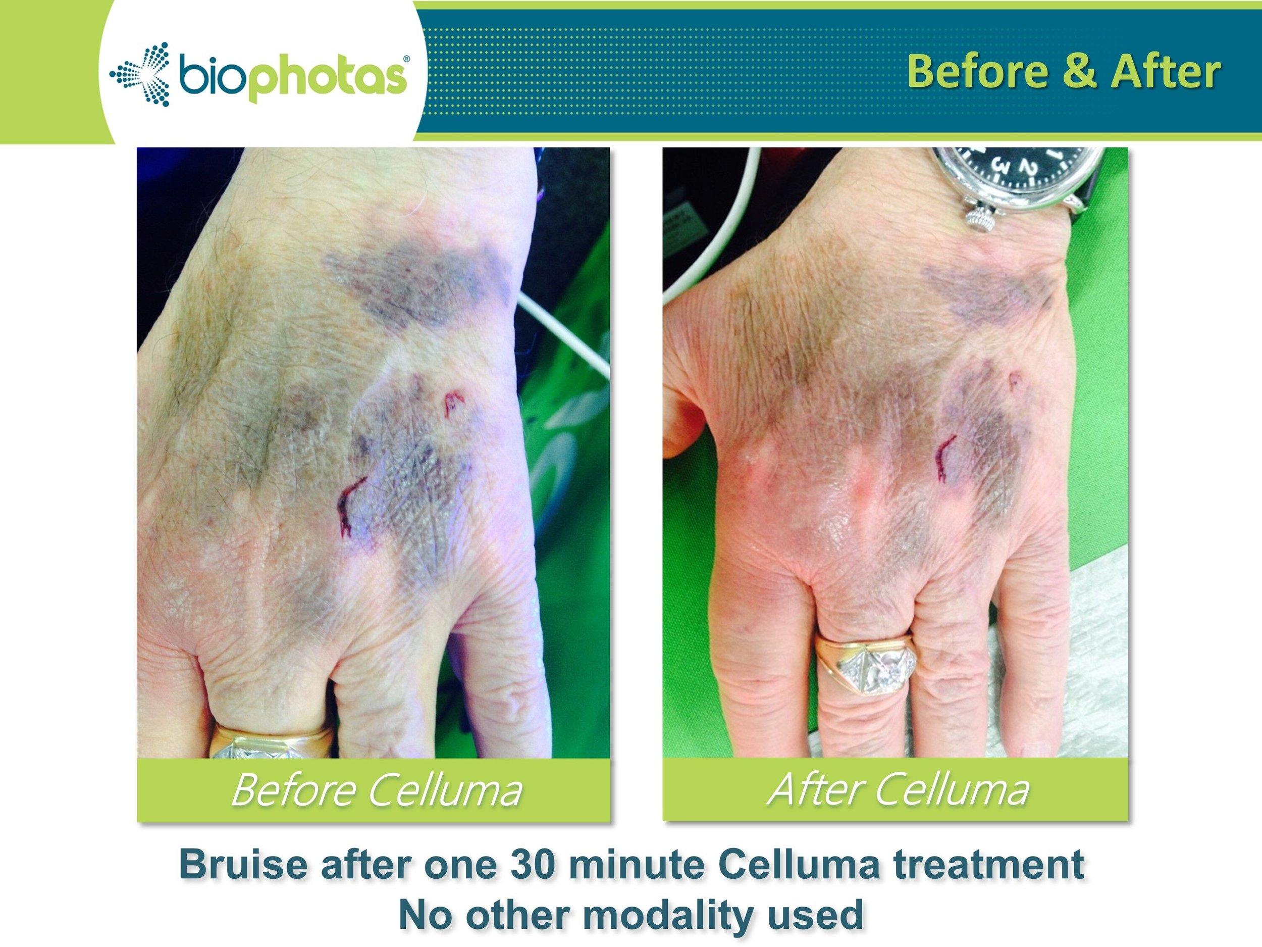 celluma.bruise.jpeg