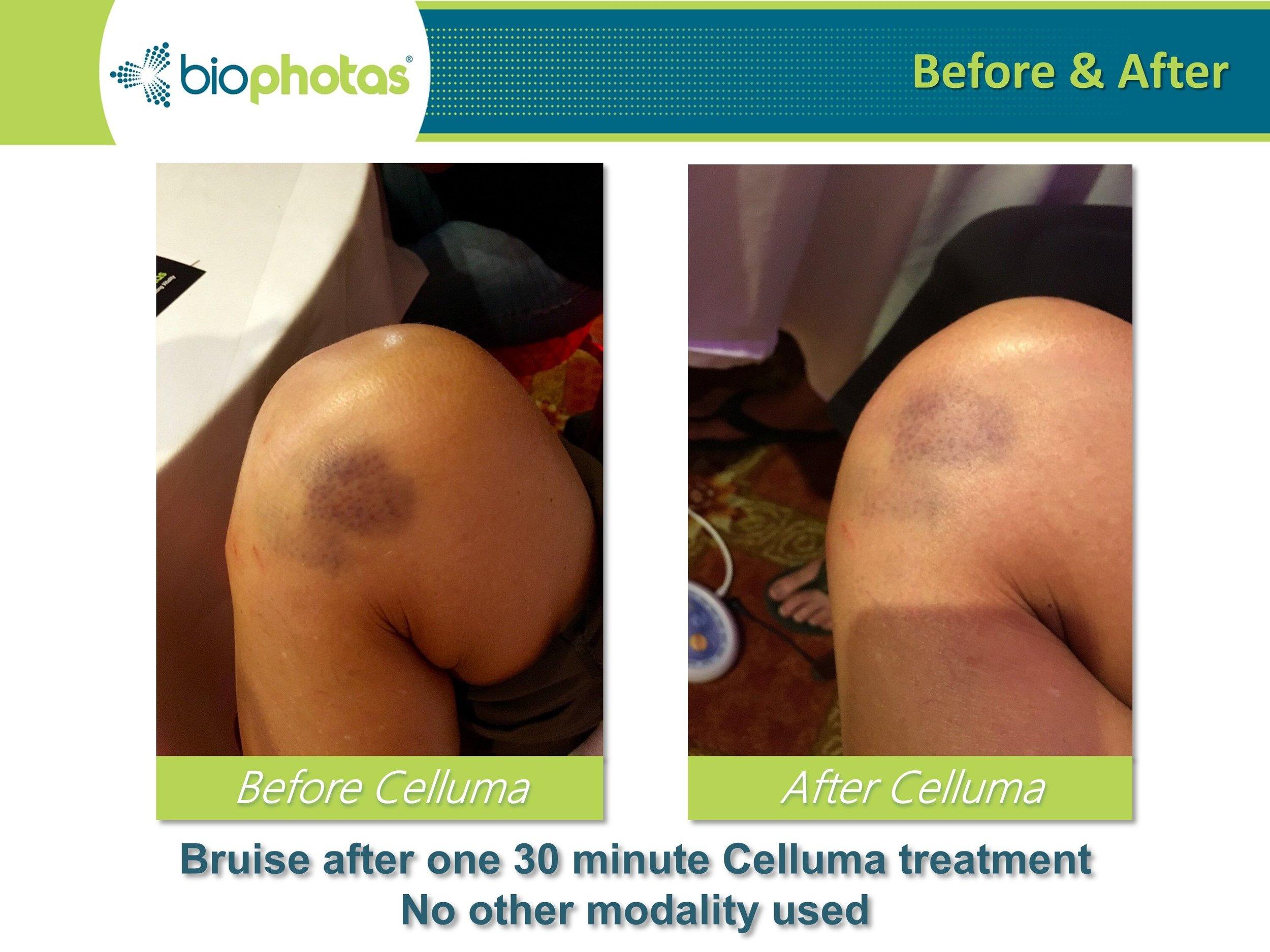 celluma.wound.healing.jpeg