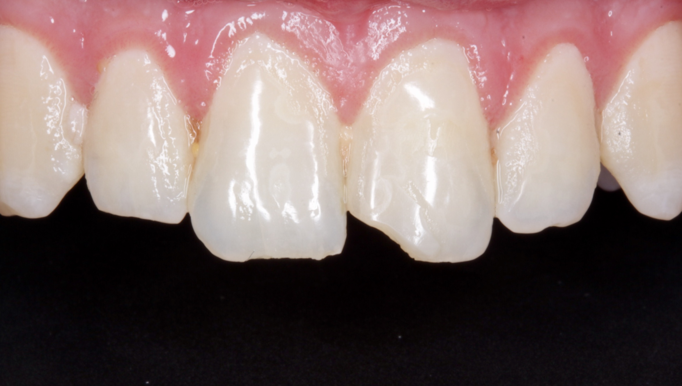 Initial situation - An accident resulted in incisal edge fracture for the front tooth.