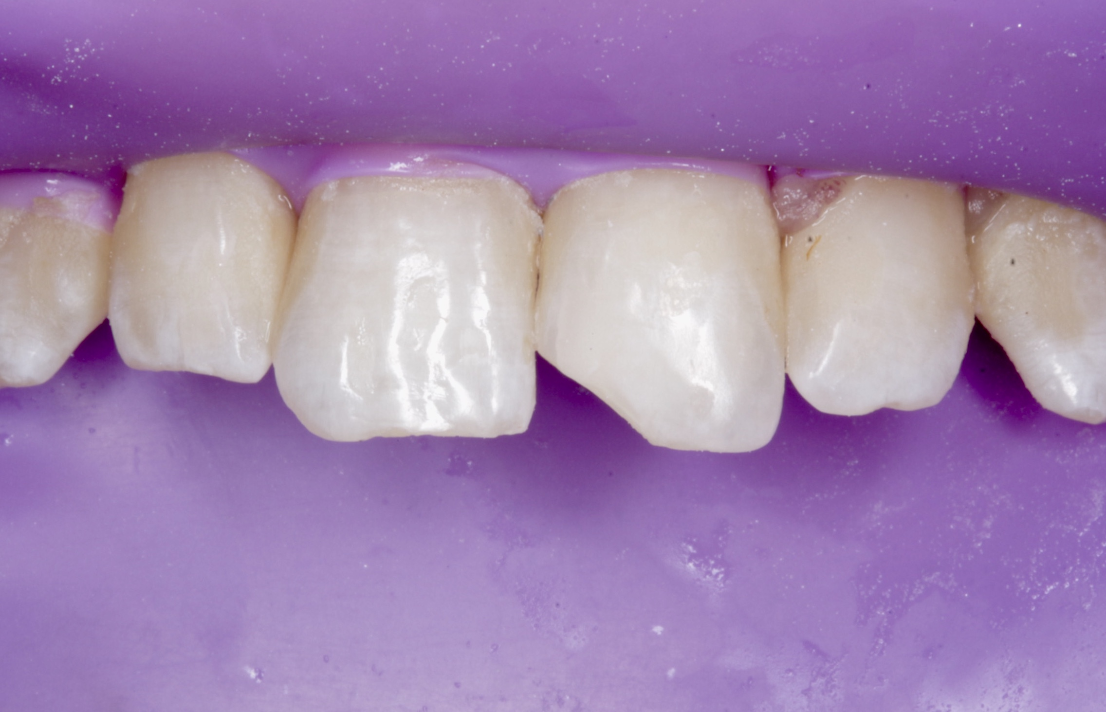Rubber dam isolation - it is the best way of achieving a dry field which would help in obtaining an optimum bond strength of composite to enamel.