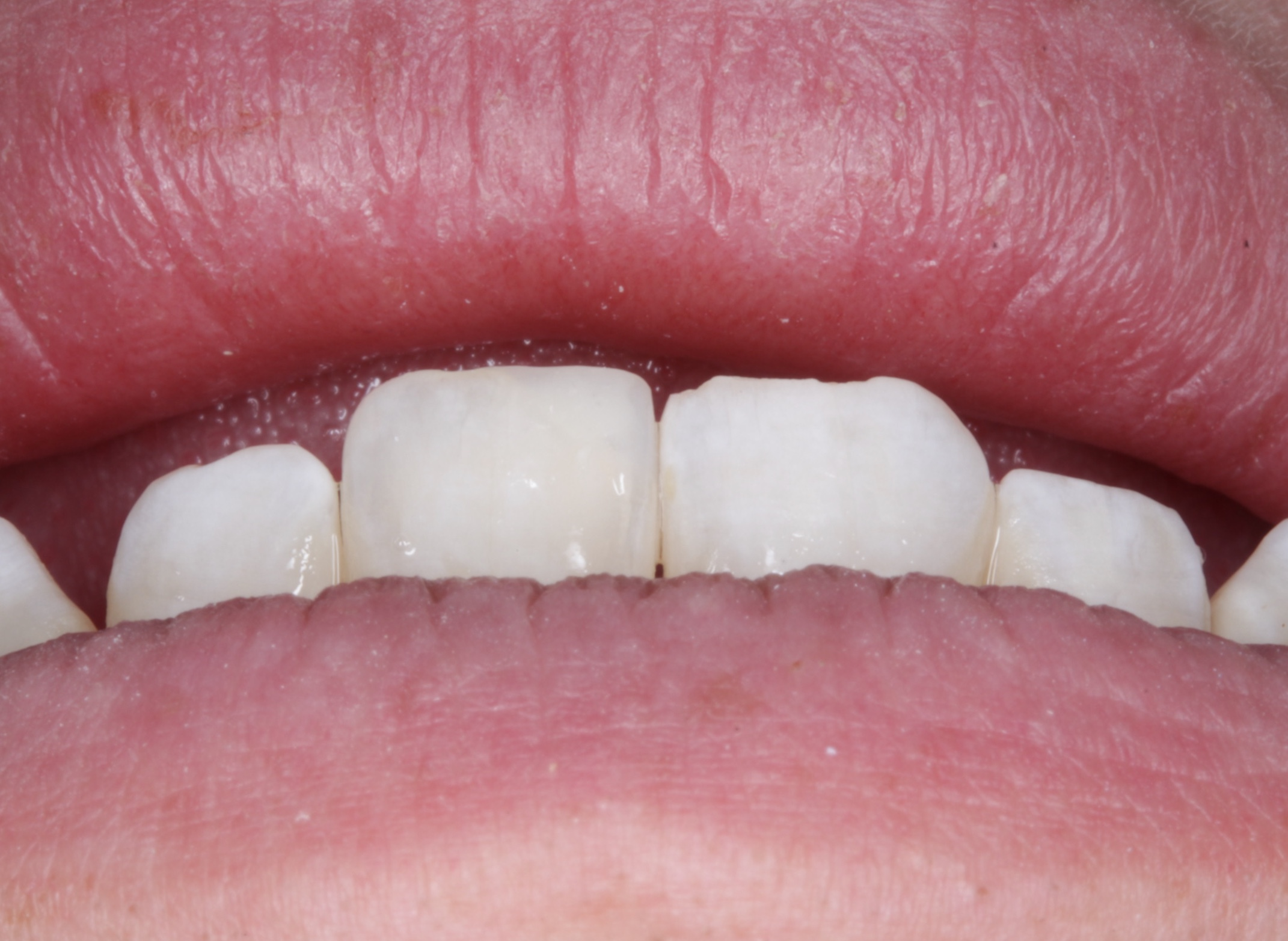 12 O'clock position - allow us to assess smile following the lower lip