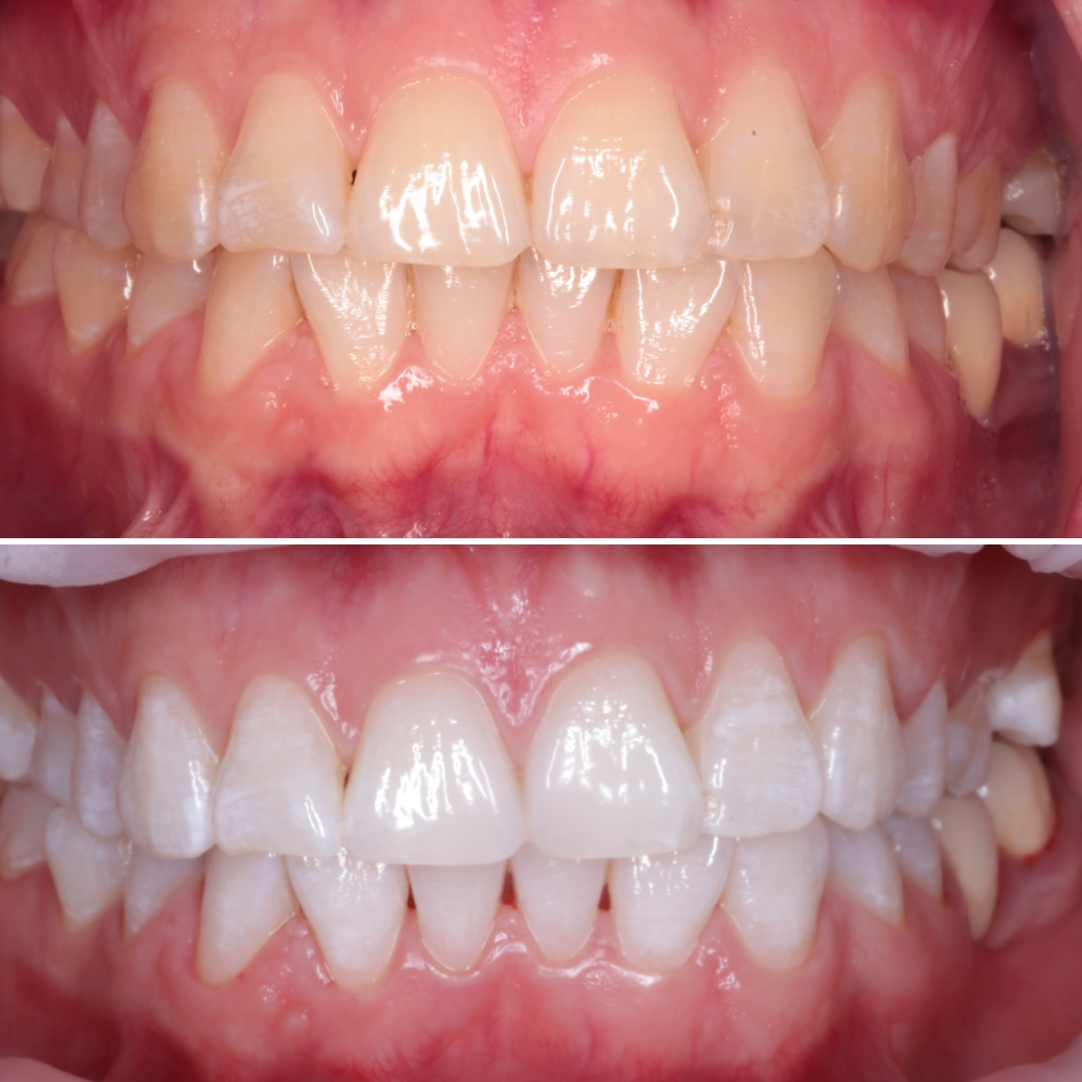 - For ultimate results in case we used both In-Office and Take-Home Whitening Systems.