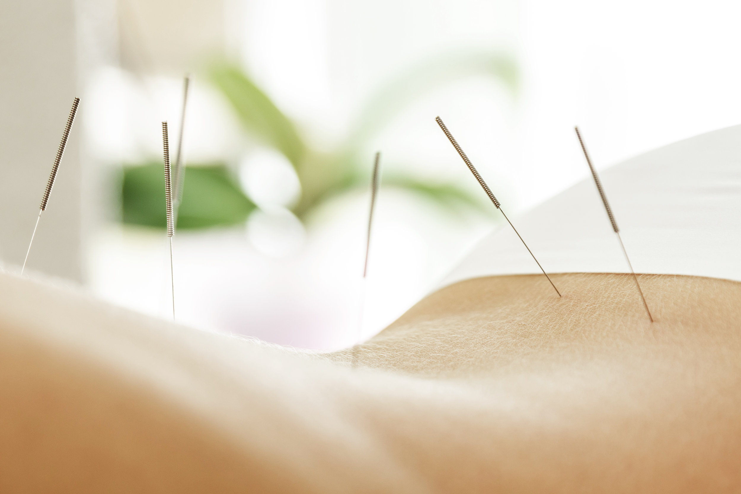 center-acupuncture-treatment