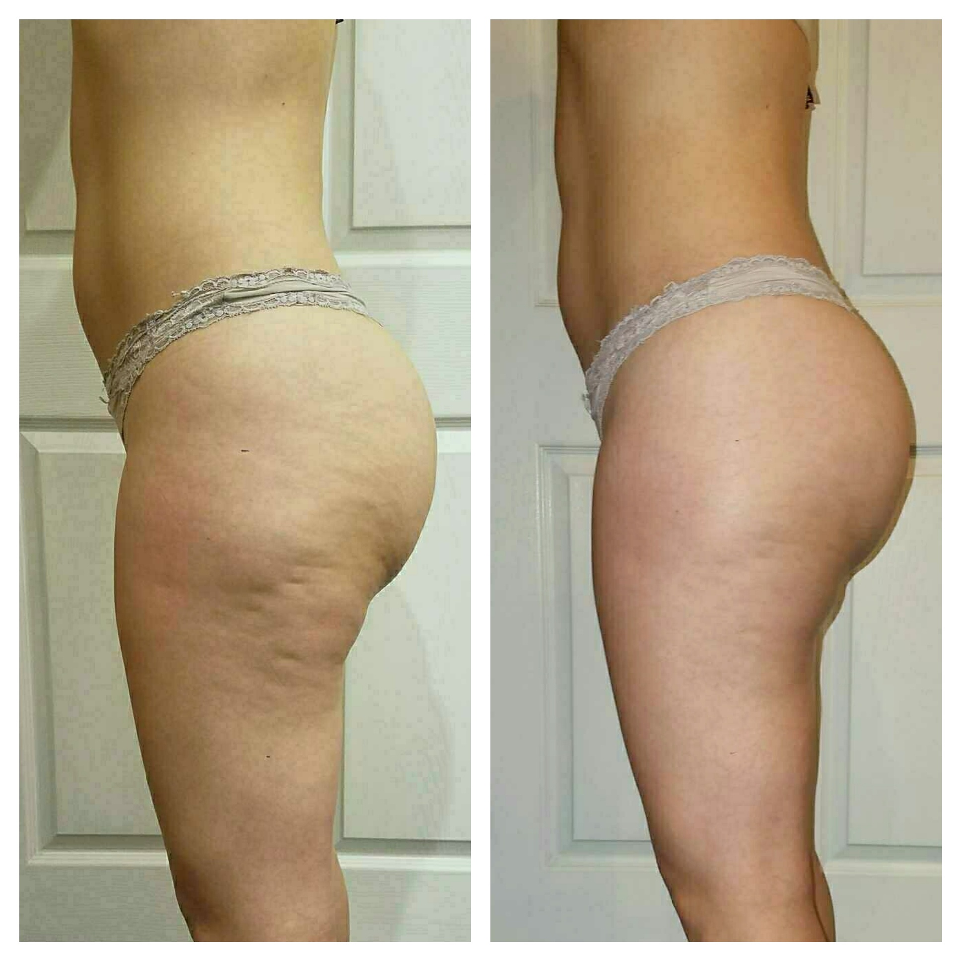 EC Beauty Studio & Spa :: Endermologie treatment results