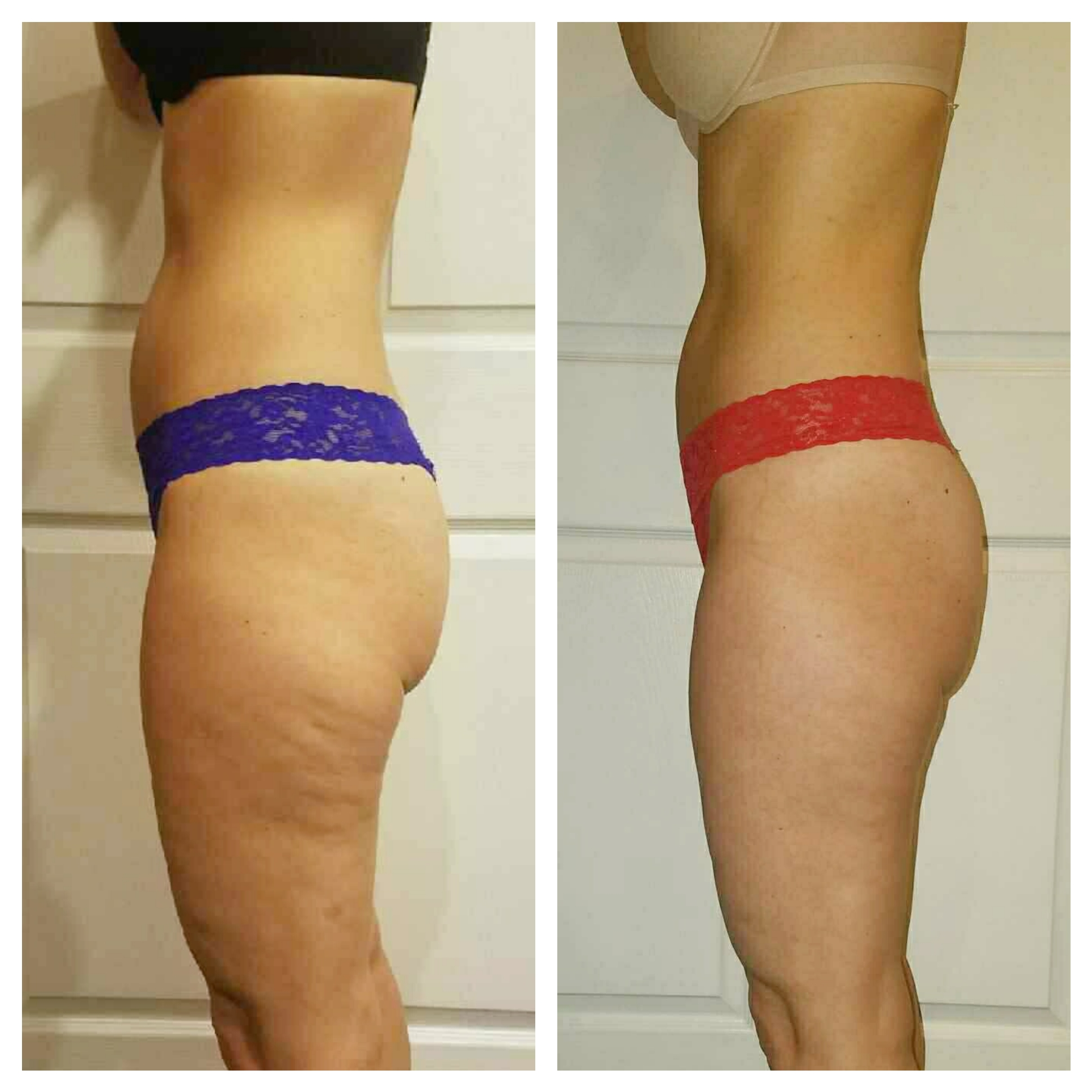 EC Beauty Studio & Spa :: LPG treatment before & after