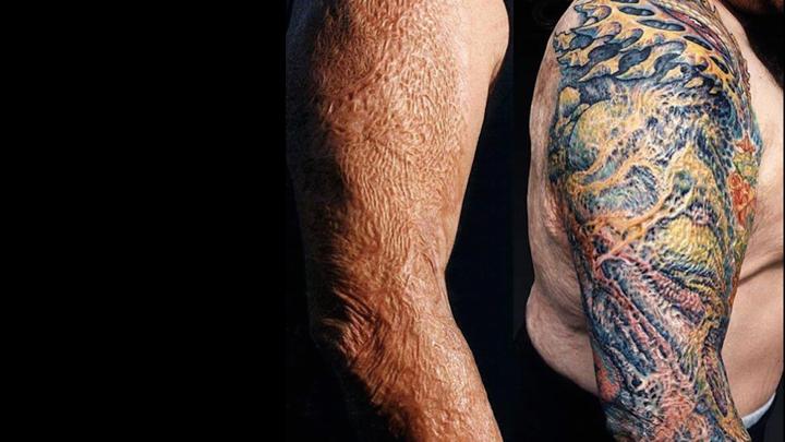 Repainting the Scar -