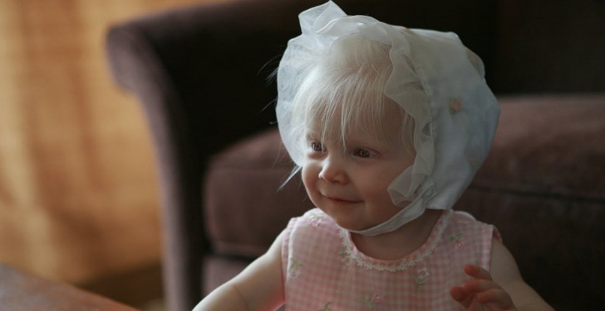 Parent of a child with albinism - Lyra and her parents blog about albinism and its potential complications