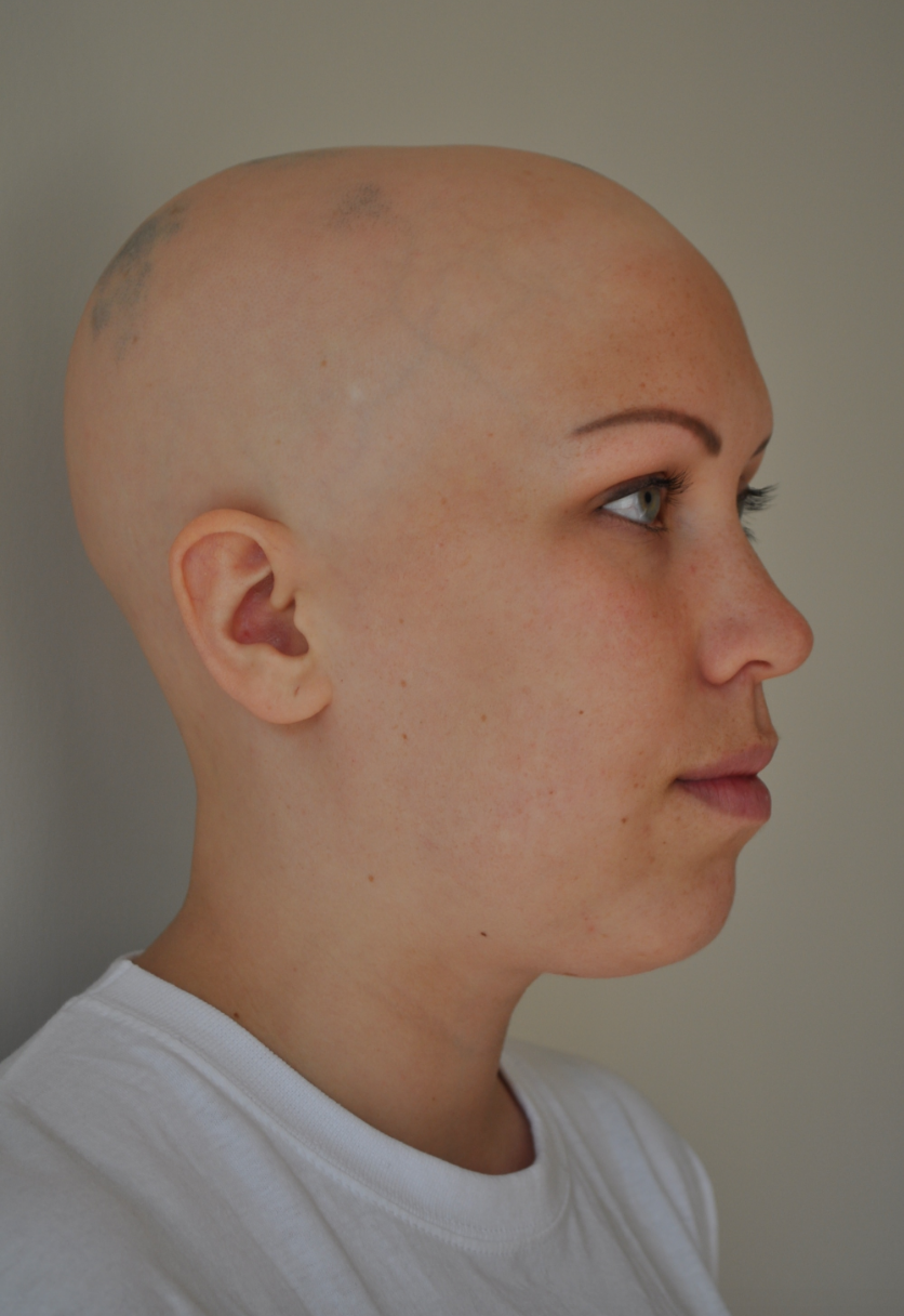 Living with alopecia - Ruth McPherson's journey living with alopecia for the past 10 years