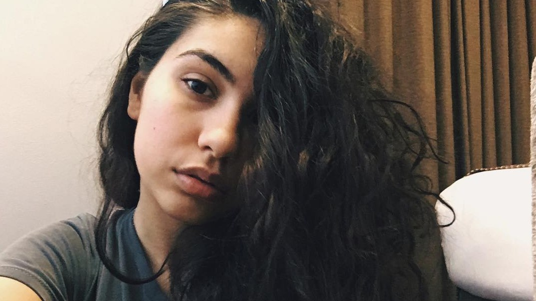 """Alessia Cara writes essay about her experience with hair loss - Alessia Cara talks about losing her hair in high school and how it became the inspiration for her song """"Scars to Your Beautiful"""""""